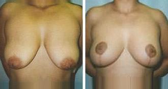 breast_lift$1a