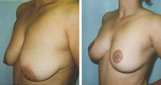 breast_lift$1b