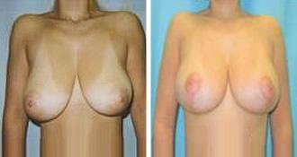 breast_lift$2a