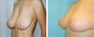breast_lift$2c